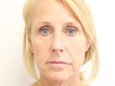 After Anti wrinkle injections