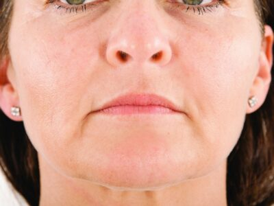 Botox after injectables