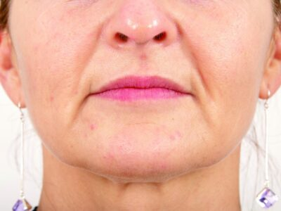 Before Botox anti ageing injectables