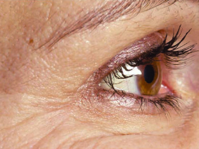 Anti Ageing Crows Feet Botox After