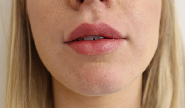 Results after undergoing lip filler treatment