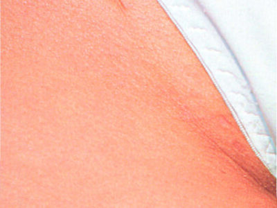 After Bikini Line Laser Hair Removal